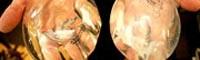 پروتز سینه + عوارض آن