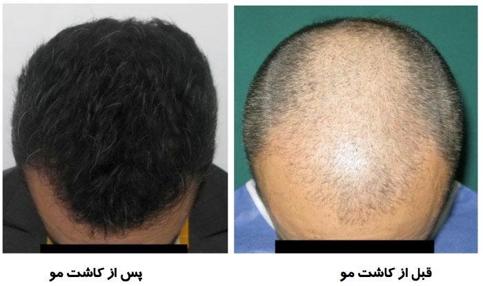 کاشت مو اصفهان